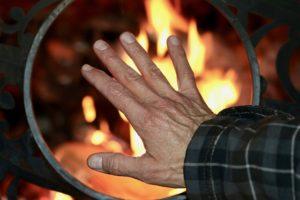 oparzenie gorącym płomieniem