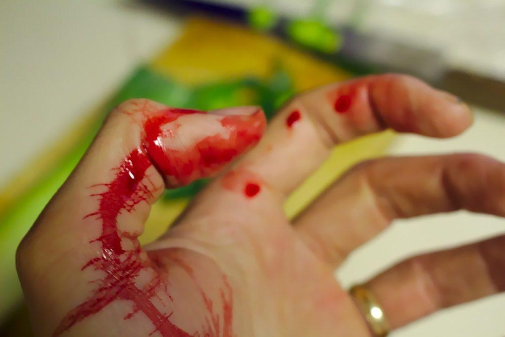 gdy wystąpi nagły krwotok